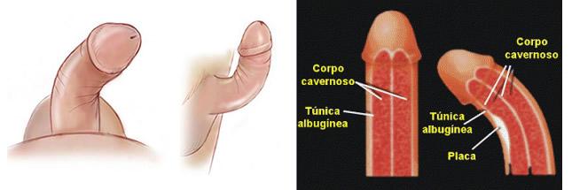 curvatura-peniana-f1