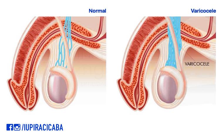 Desenho esquemático de testículos normais em comparação a testículos com varicocele