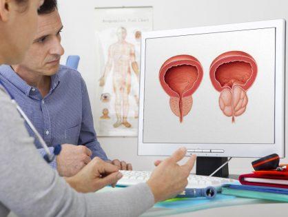 O que é a Hiperplasia Benigna da Próstata?