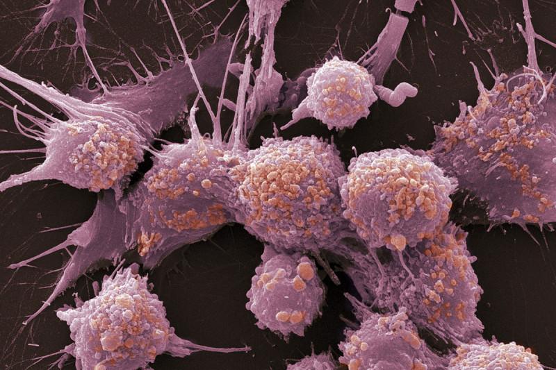 Câncer de Próstata em estágios avançados
