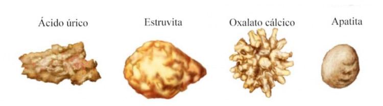 Tipos diferentes de pedras: Ácido Úrico, Estruvita, Oxalaro Cálcico e Apatita