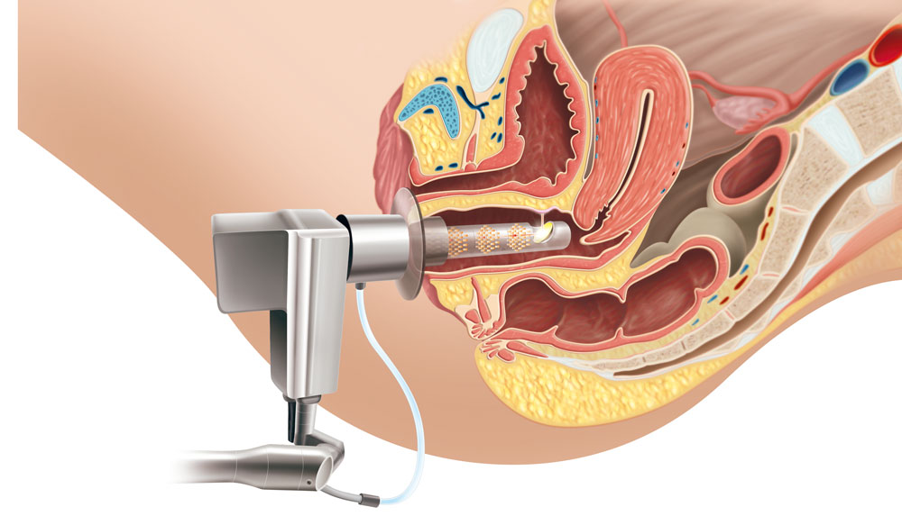 Desenho esquemático da aplicação do Laser Vaginal