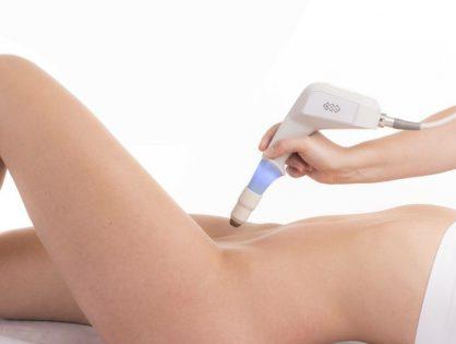 O que é o Laser Vaginal?